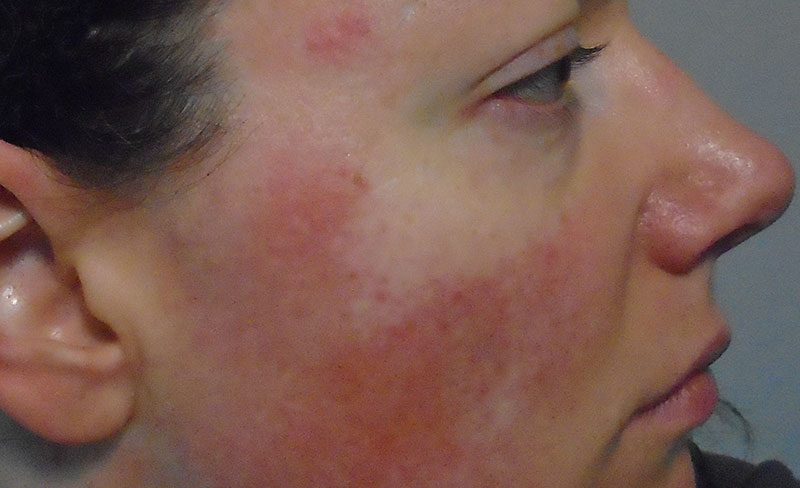 Amber light therapy for rosacea treatment.