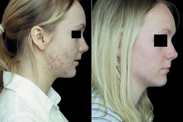Acne Before And After Omnilux Light Therapy Options L L C